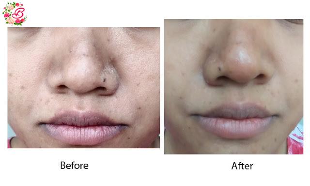 pores solution