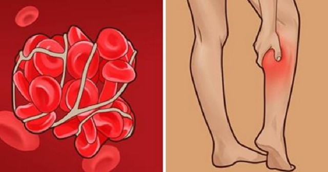 6 Signs You May Have A Blood Clot