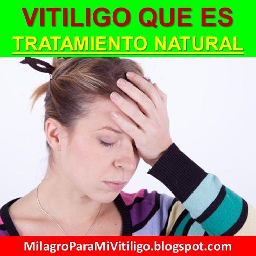 vitiligo-que-es-como-empieza-se-cura-naturalmente