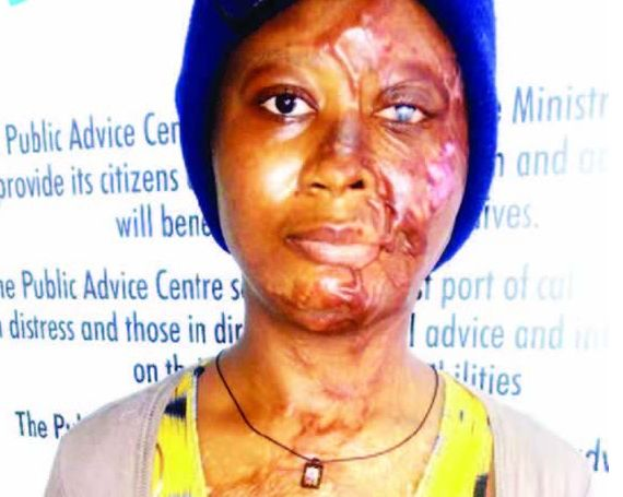Beautiful lady bathed with acid by ex-lover... demands justice