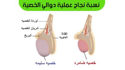 دوالي الخصية بالانجليزي, دوالي الخصية والحمل, علاج دوالي الخصية, اسباب دوالي الخصية, اعراض دوالي الخصية اليمنى, درجات دوالي الخصية بالصور, علاج دوالي الخصية بالاعشاب, ,دوالي الخصية والانتصاب