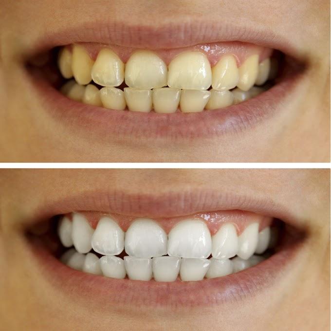 إحذر أطعمة ومشروبات تسبب أصفرار الأسنان تعرف عليها