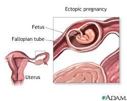 ciri ciri hamil diluar kandungan