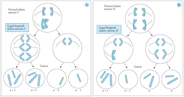 Gagal berpisah meiosis 1 anafase 2