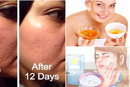 Here are the Best Ways In Getting Rid Of Your Irritating Pimples! Must See!