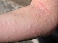 12 Cara Mengatasi Biduran (Alergi) Secara Alami, Cepat dan Ampuh