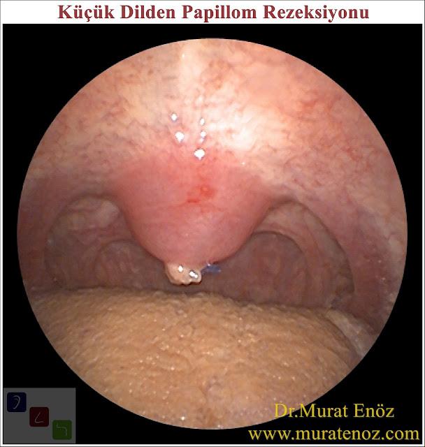 Küçük dilde papillom - Küçük dilde papillom belirtileri - Küçük dilde papillom  nasıl anlaşılır? - Uvulada papillom - Küçük dilde siğil - tedavisi - Küçük dilden papillom rezeksiyonu - Küçük dilde papillom tedavisi - Küçük dilde papillom ameliyatı - Ağızda papillom siğil - Ağızda HPV enfeksiyonu - İnsan papilloma virüsü - HPV virüsü - Ağızda HPV enfeksiyonu - Ağızda HPV enfeksiyonunun belirtileri - Ağızda HPV enfeksiyonu için risk faktörleri - Ağızda HPV enfeksiyonu tedavisi - Ağızda HPV enfeksiyonu için korunma yolları