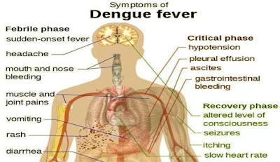dengue, ডেঙ্গুজ্বর