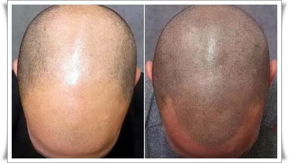 Трихопигментация волос фото