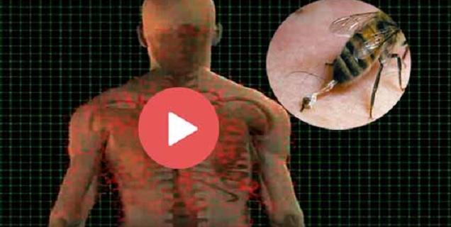 Δείτε πως αντιδρά ο οργανισμός μας στο τσίμπημα της μέλισσας video