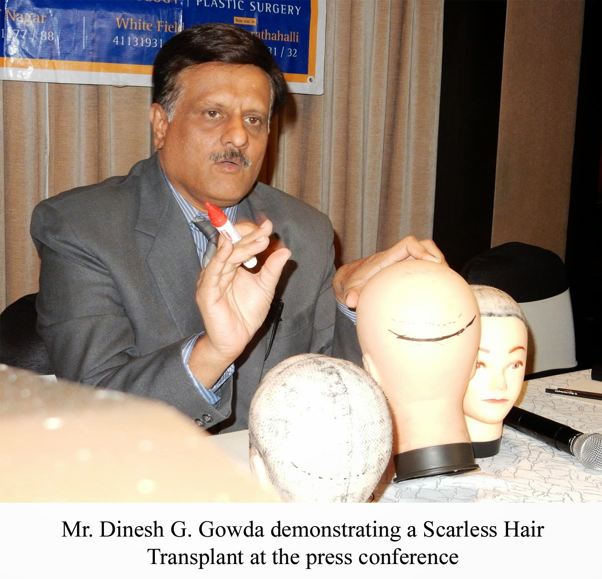 Hair transplantation treatment in bangalore dating