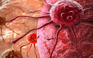 Λογισμικό υπολογιστή ανιχνεύει τον καρκίνο πριν την εμφάνιση των συμπτωμάτων