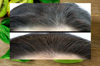 Traiter les cheveux blanc naturellement avec ce smoothie vert