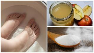 Combinez ces 2 ingrédients pour se débarrasser de mycose des ongles