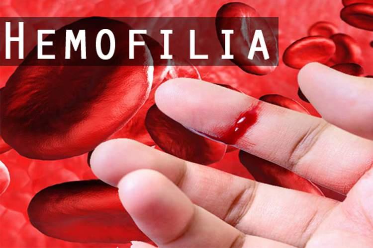 Sikat Gigi Berdarah? Waspadai Mungkin Kamu Terkena Penyakit Ini