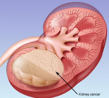 Kidney Cancer Symptoms and Signs