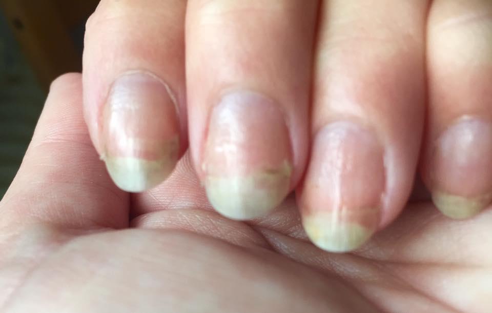 naglar går sönder