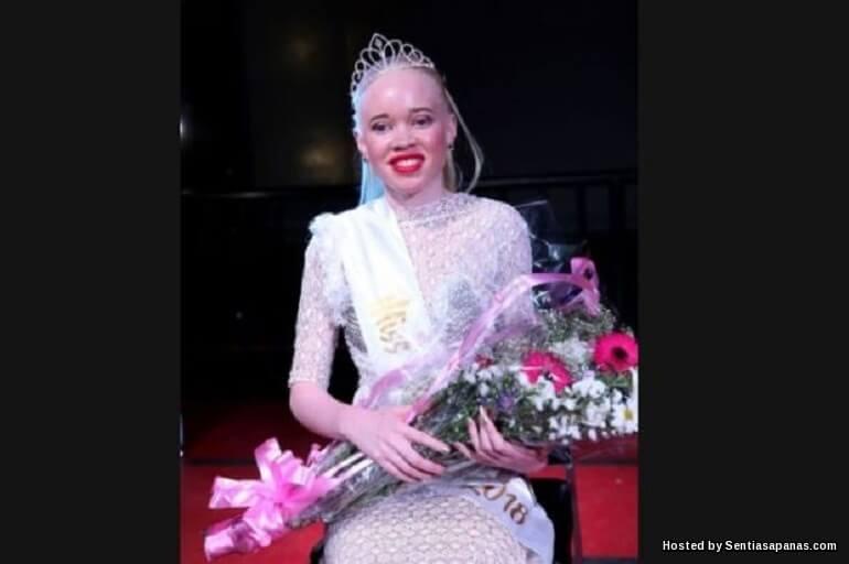 Pertandingan Ratu Cantik Wanita Albinno Di Zimbabwe