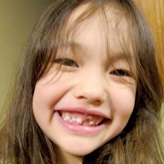 Tư vấn điều trị cười hở lợi cho bé
