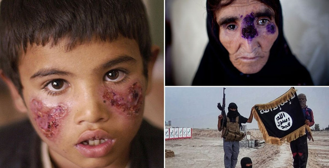 """Căn bệnh """"ăn thịt người"""" đang lây truyền trên khắp Trung Đông."""