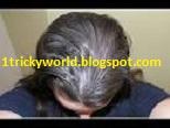 बिना कलर किये कैसे पाये सफ़ेद बालो से छुटकारा घरेलु नुस्खे|