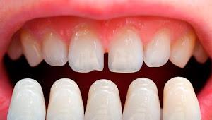 Cerita Lucu Dokter Pasang Gigi Palsu Seharga 2 Juta