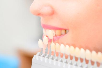Dental Veneer treatment image