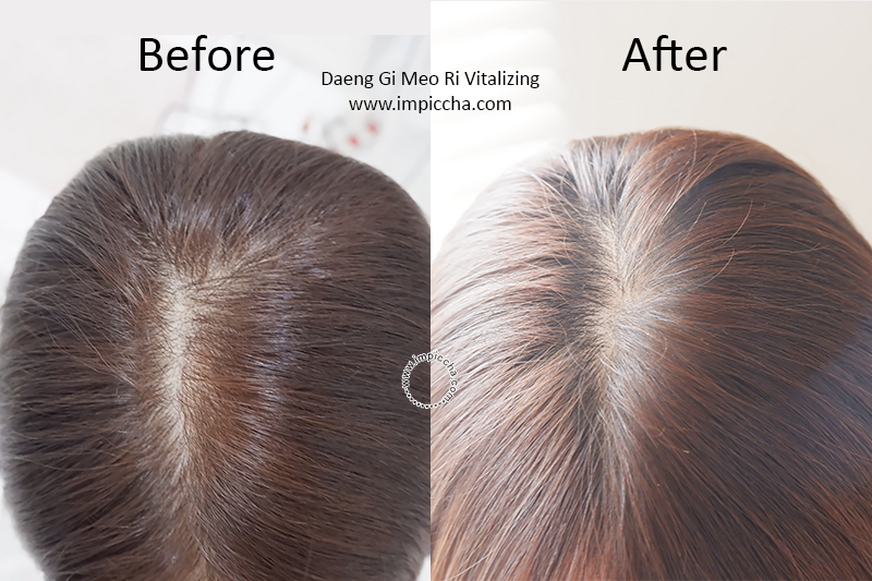 Before - After Daeng Gi Meo Ri