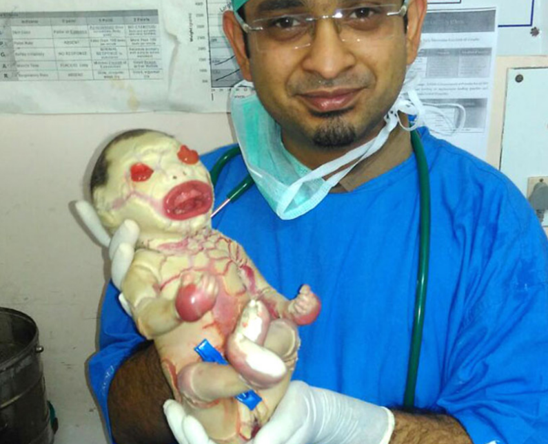 Baby born with bizarre genetic disorder | Himalayan News
