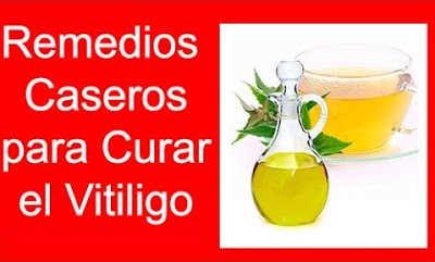 remedios-caseros-para-curar-el-vitiligo-tratamiento-natural