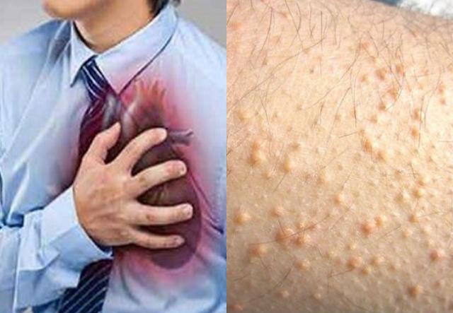 Kenali Sejak Dini, Ini 7 Tanda Penyakit Jantung yang Bisa Dilihat Dengan Mata Telanjang