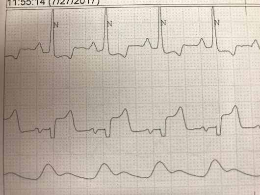 Dr. Smith's ECG Blog