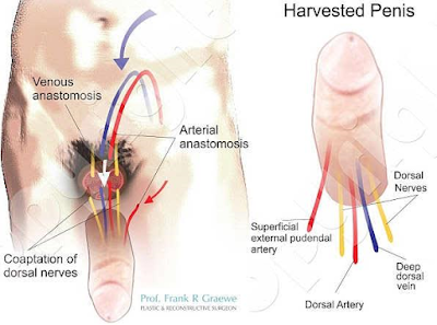 picture of procedure of how the first penis transplant was carried out in USA
