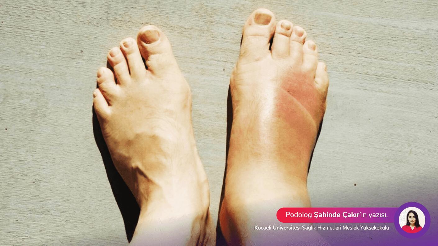 Gut hastalığı ağrısı nasıl geçer ile Etiketlenen Konular 10