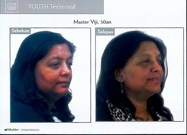 Testimoni YOUTH Skin care