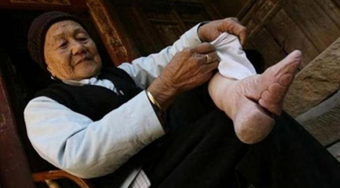 Pengikatan Kaki (Foot Binding)