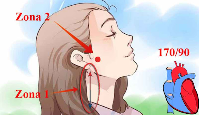 metoda simpla de scadere a tensiunii arteriale
