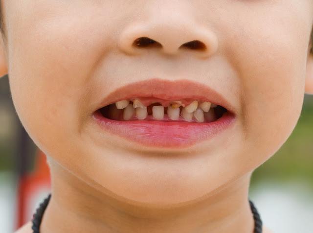 Balita Rentan Karies dan Sakit Gigi, Perkuat Gigi dan Gusi Anak Dengan 5 Jenis Makanan ini