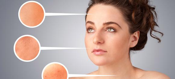 Tanda Sindrom Ovarium Polikistik yang Bisa Wanita Sulit Hamil