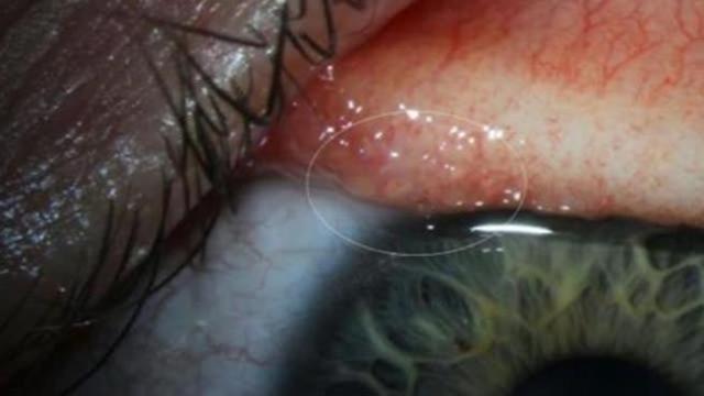 Buongiornolink - Oregon: una ragazza con 14 vermi nell'occhio