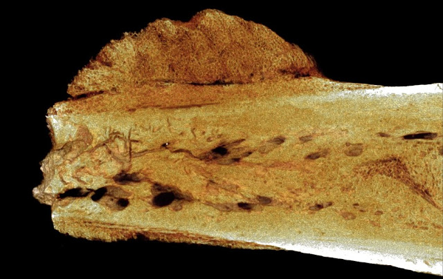 Fossil evidence reveals that cancer in humans goes back 1.7 million years