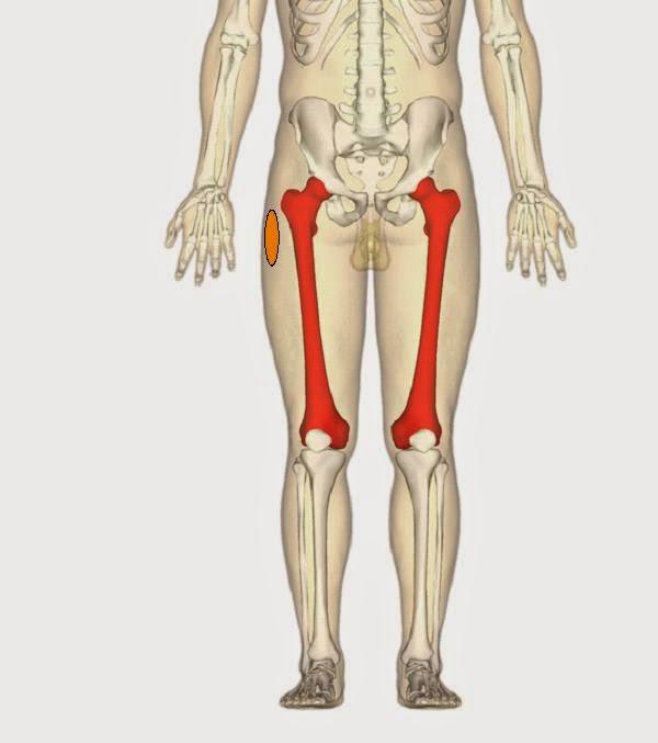 Trocanteritis o Bursitis trocantérica. Localización anatómica