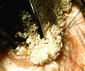 how to tell if you have lice eggs or dandruff