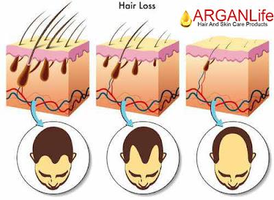 arganlife daily hair loss