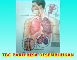 cara mudah mengobati tbc paru