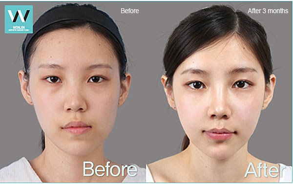 Facial Asymmetry Correction Before And After