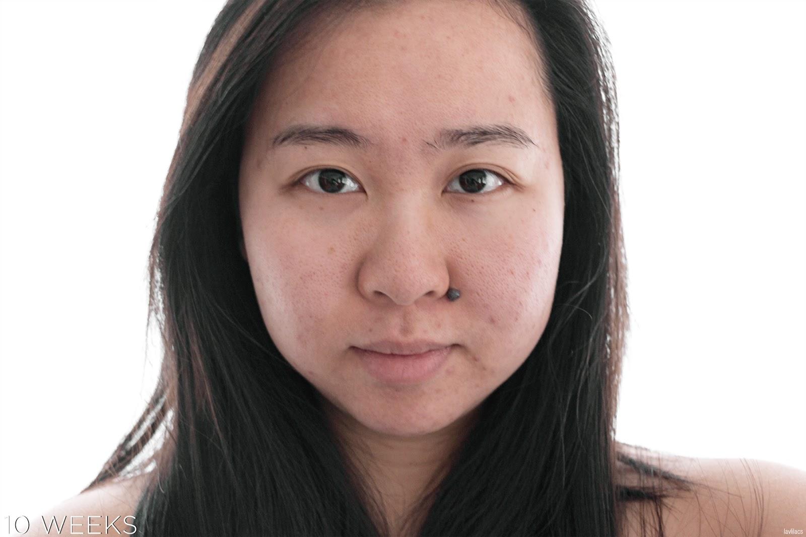 tria Hair Removal Laser Facial Hair 10 Weeks, 2 months