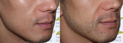 Hasil Pemakaian Kirkland Minoxidil Untuk Kumis Jenggot dan Brewok 1 Bulan
