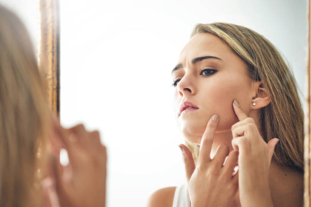 pimple on face removal tips