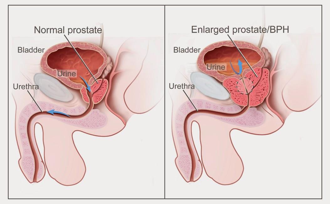 Medica prosztatitis